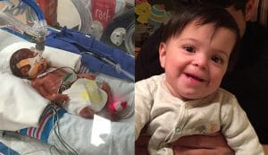 Baby Anthony as a premature baby in hospital and as a well baby after